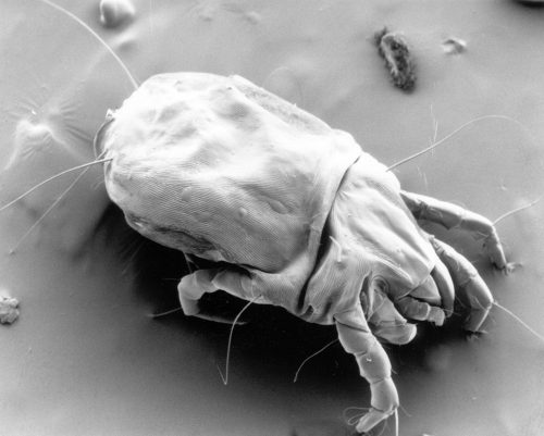 CSIRO ScienceImage 11085 A scanning electron micrograph of a female dust mite