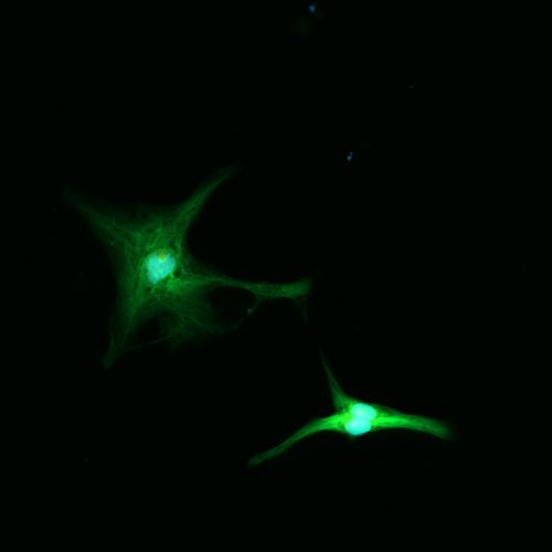 Mice embryonic fibroblasts GFP