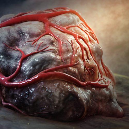 3D still showing tumor